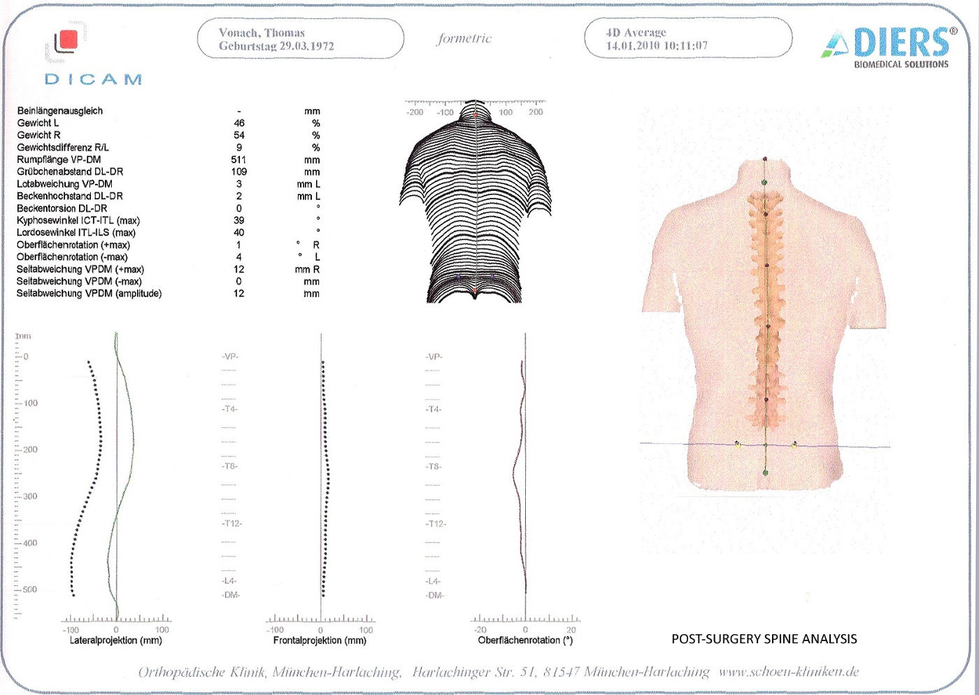 Spine_Details Post Surgery_Thomas J. Vonach.jpg